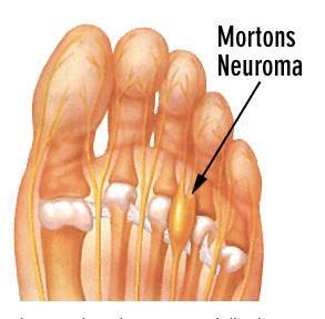 diagram of morton's neuroma