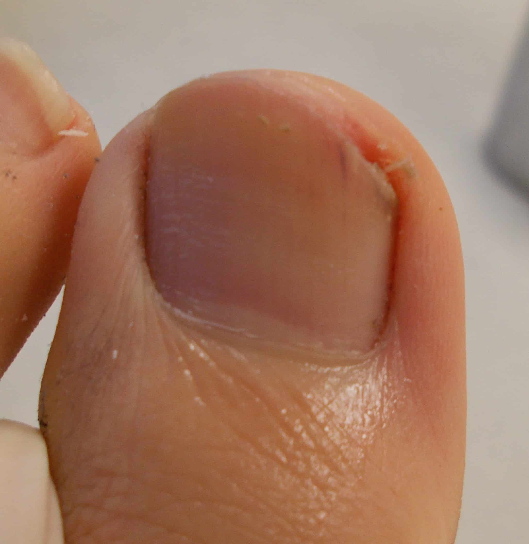 photo of fungal nail pt 2 after