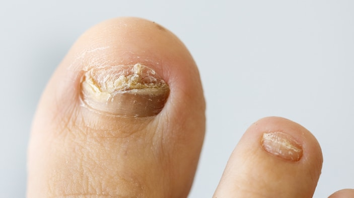 photo of fungal nail
