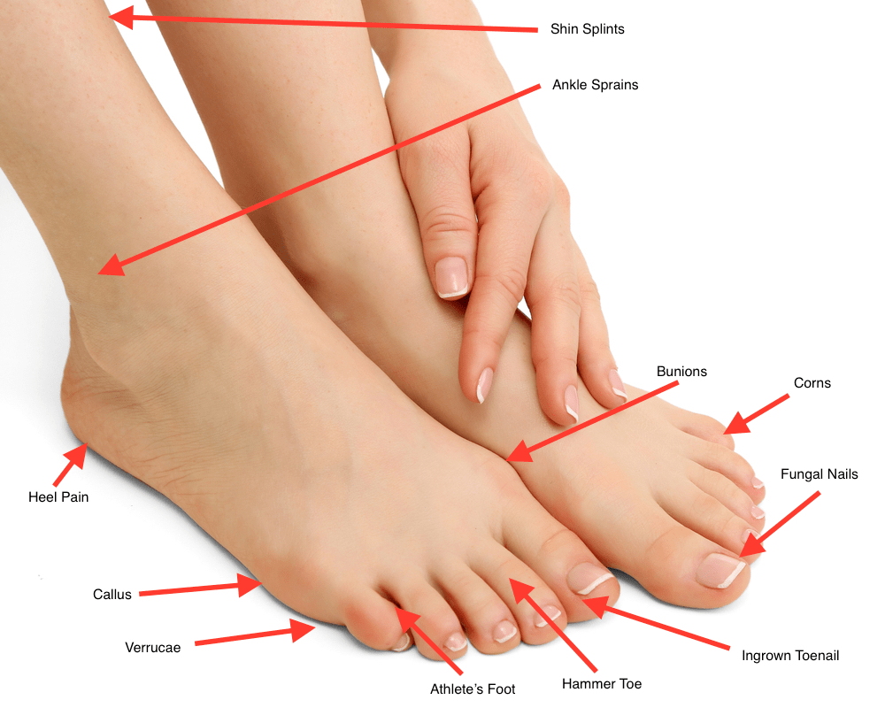 photo of foot problems